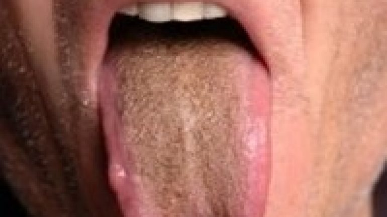 Зубами головку члена онлайн, рыжим кончают в рот